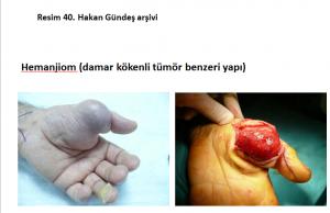damar-kokenli-tumor