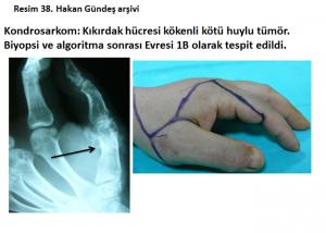 kemik-hucre-tumor