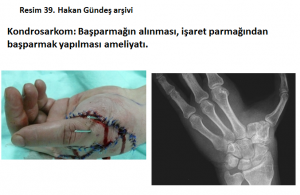 kemik-hucre-tumorleri